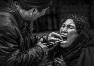 PhotoVivo Gold Medal - Lishu Shu (China)  Tooth Extraction